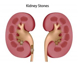 Melbourne Bladder Clinic Urinary Stones