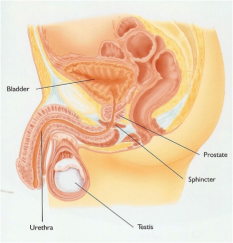 the sphincter which acts as a tap for the bladder is usually damaged as a result of prostate surgery  melbourne bladder clinic   male stress urinary incontinence  rh   bladderclinic   au